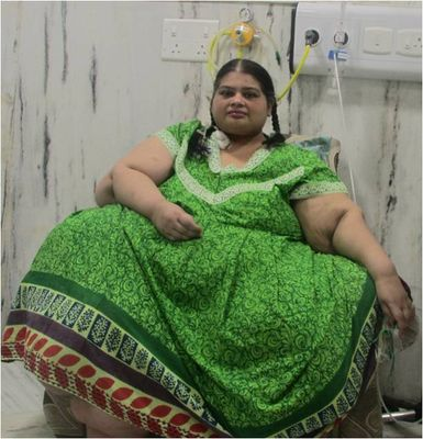 Amita when she weighed 300kg