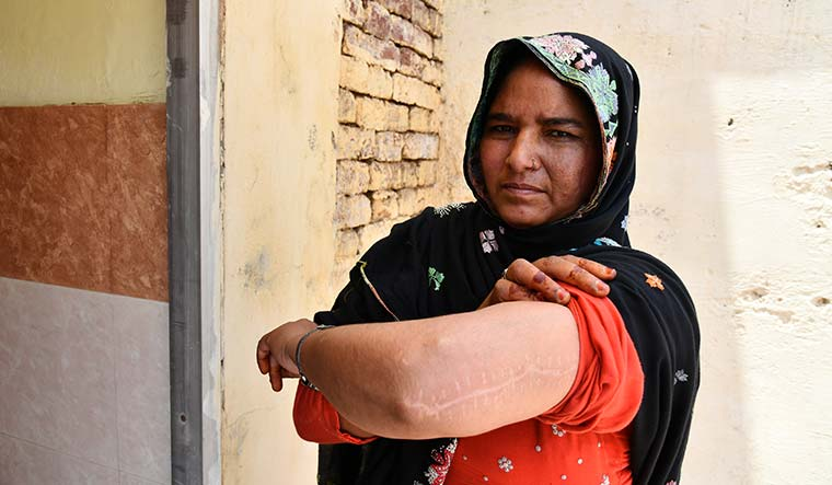Courage under fire: Sanjeeda, a resident of Kulhedi village, was shot by gangsters who thought she was helping the police | Sanjay Ahlawat