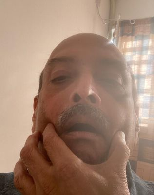 Bruising ordeal: Mehul Choksi at a hospital in Dominica.