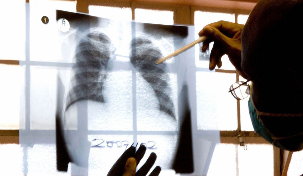 WHO endorses 'made in India' test for TB