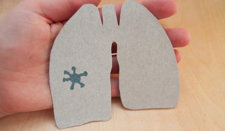 covid-19-lungs-coronavirus-patient-health-shut