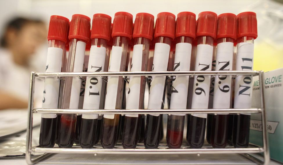 blood-test-rep-reuters