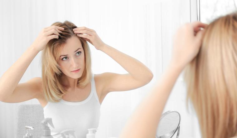 hair-loss-autoimmune-diseases-alopecia-aerata-shut