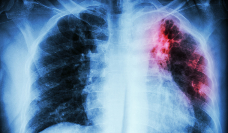 New TB drug gets USFDA approval