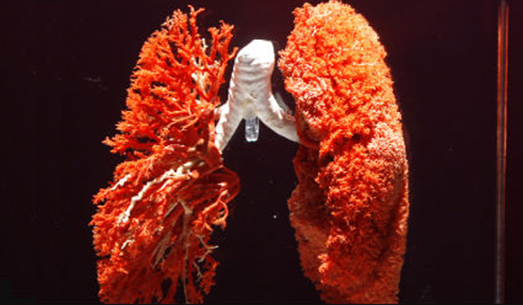 Vitamin D supplements could be a lifesaver for some lung patients