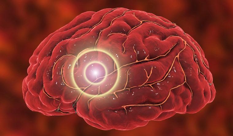 Brain-stroke-Migraine-and-headache-illus-shut