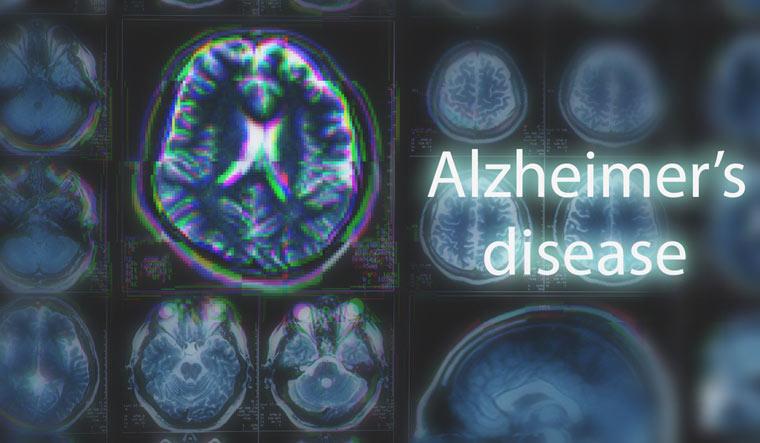 Alzheimers-disease-brain-scan-shut