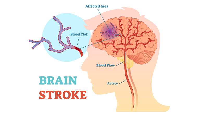 brain-stroke-head-blood-circulation-blood-clot-shut