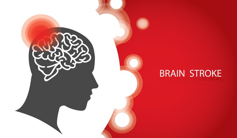 brain-stroke-head-blood-circulation-shut