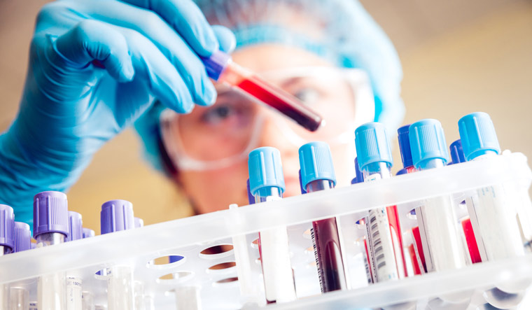 New blood test found to predict onset of TB six months earlier