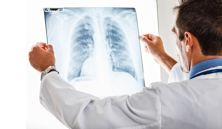 Doctor-examining-a-lung-radiography-x-ray-chest-shut