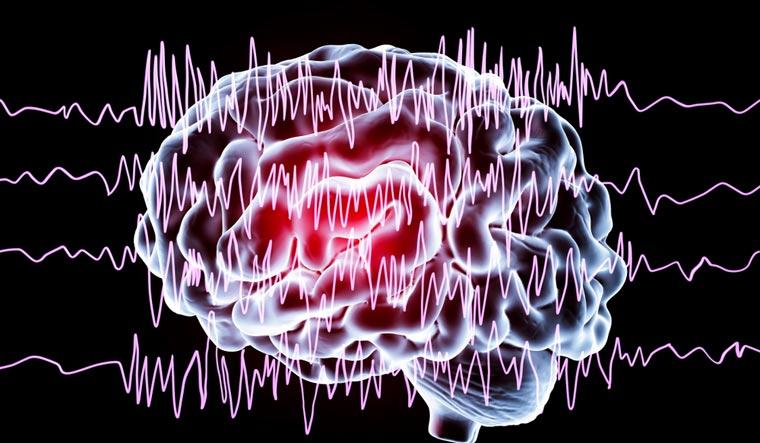 brain-encephalography-in-epilepsy-patient-during-seizure-attack-shut