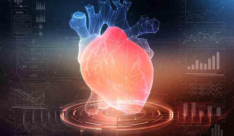 3d-print-heart