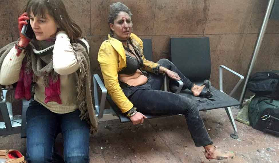 Brussels-Airport-injured
