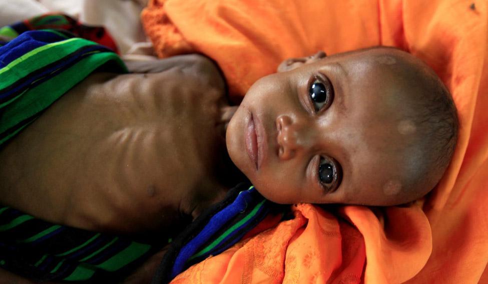 malnourishment-reuters