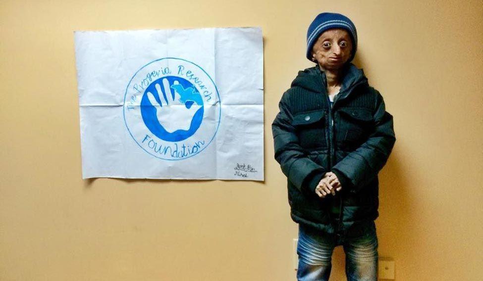 nihal-progeria